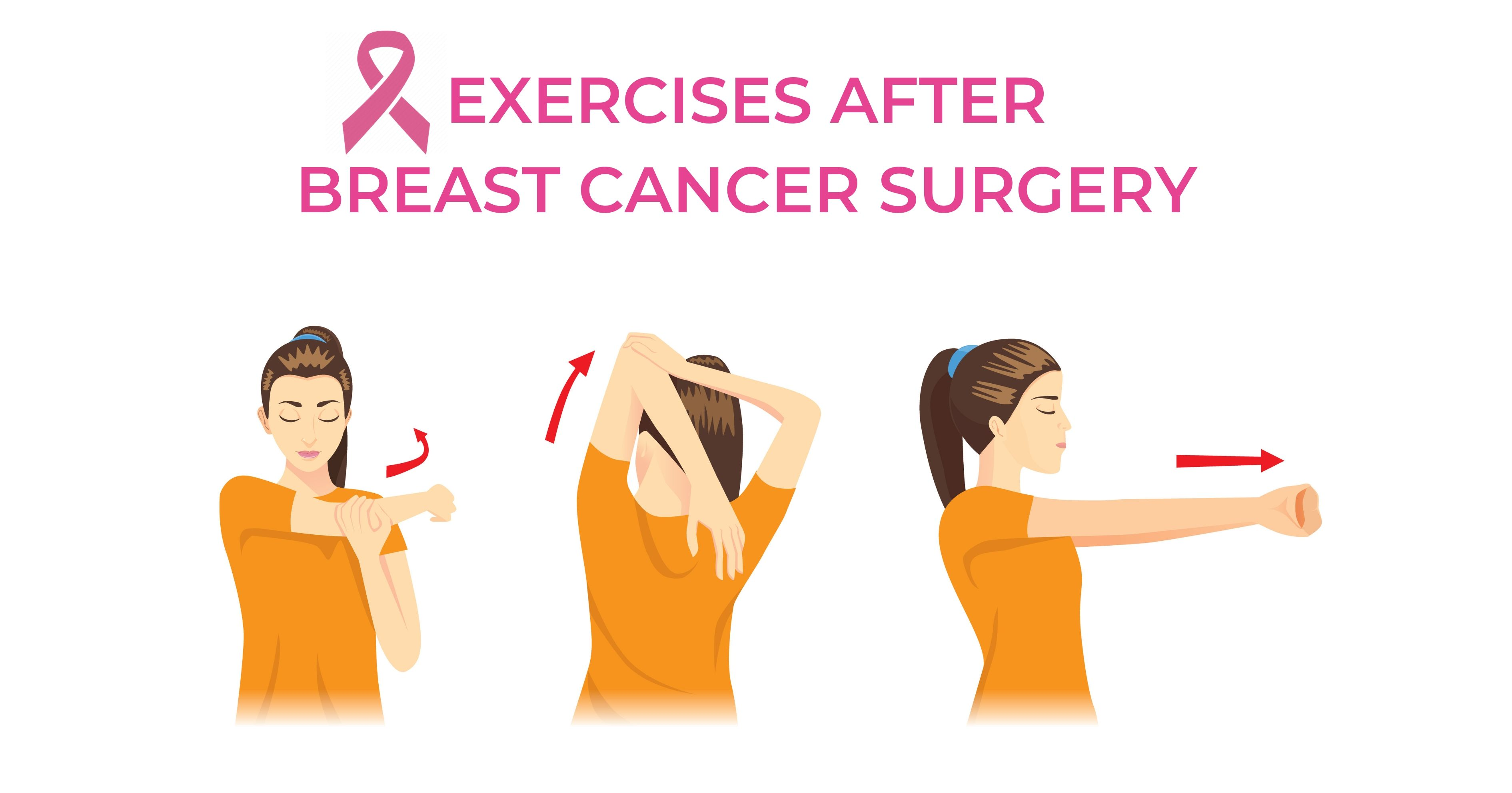 Exercises after breast cancer surgery